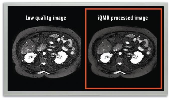 MedicVision MRI Image Enhancement